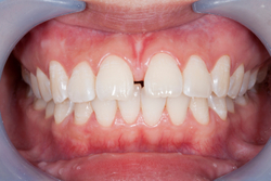 Frenectomy surgery performed at Yakima Valley Periodontics.